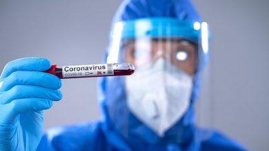 Photo of Coronavirus | Qué es el «plasma convaleciente», el tratamiento de hace un siglo con el que algunos hospitales buscan salvarles la vida a pacientes de covid-19
