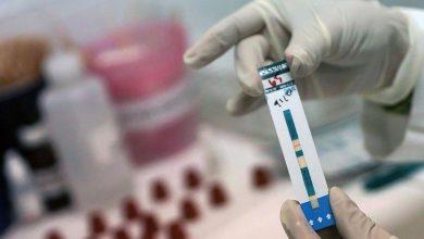 Photo of El misterio del coronavirus y el VIH: por qué los seropositivos apenas se infectan