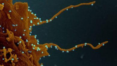 Photo of Consecuencias del coronavirus: la «siniestra» transformación que el Sars-Cov-2 provoca en las células humanas infectadas