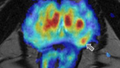 Photo of Inteligencia artificial contra el cáncer de próstata: la nueva técnica que lidera España