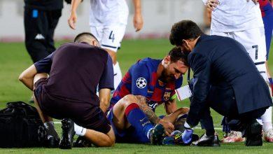 Photo of Lionel Messi solo tiene un golpe y jugará este viernes contra Bayern Munich